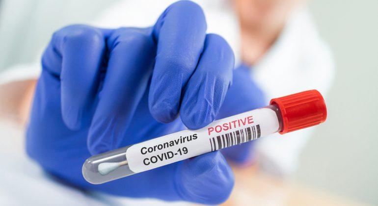 Bollettino coronavirus: in provincia due nuovi casi ma in Piemonte i contagi sono 639. Anche 22 morti